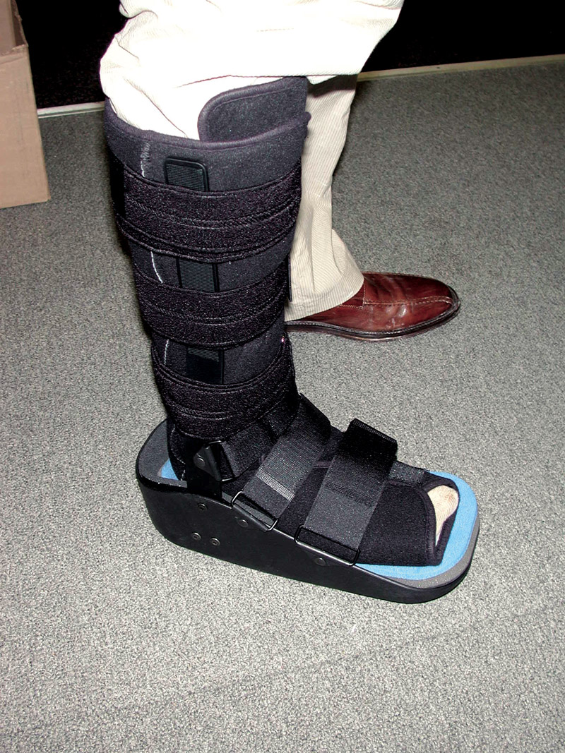 Shoes Alternative To Walking Boot