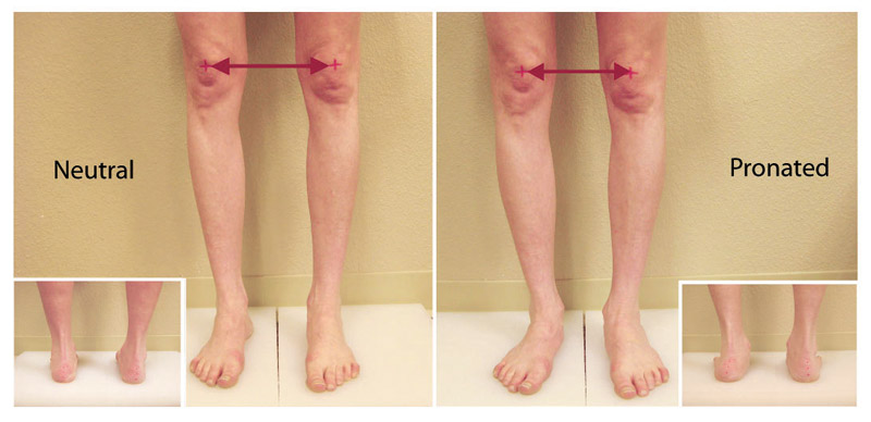 Treating Knee Pain From The Ground Up Lower Extremity Review Magazine