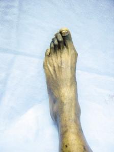 Figure 4. Hallux abducto valgus deformity.