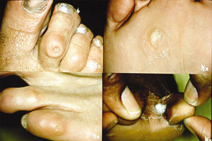 Figure 5. Upper left: Corn on 2nd toe. Upper right: Callus below 4th metatarsal. Lower left: Pinpoint keratosis on 5th toe. Lower right: Soft corn between 4th and 5th toes.
