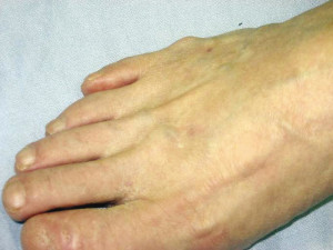 Figure 6. Tailor's bunion