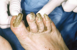 Figure 7. Nail deformities.