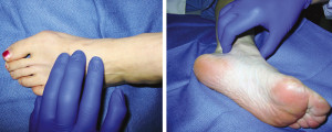 Figure 1. Palpating the dorsalis pedis pulse. Figure 2. Palpating the posterior tibial pulse.