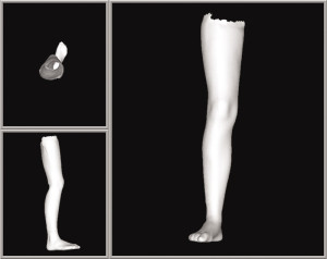 3D model of full leg scan.