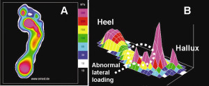 Figure 1. Peak pressure profile for a diabetic foot. A) 2-D depiction of plantar pressure B) 3-D depiction of plantar pressure (note the abnormal spikes along the lateral forefoot)