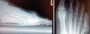 Figure 2. Radiographs of structural hallux limitus. Note the significant spurring of the joint preventing mobolization and the pervasive destructive changes in the joint.