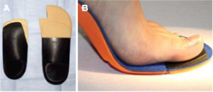 Figure 6. Orthotic options for FnHL. A: First ray cutout and a reverse Morton's extension. B. Cluffy wedge under the hallux.