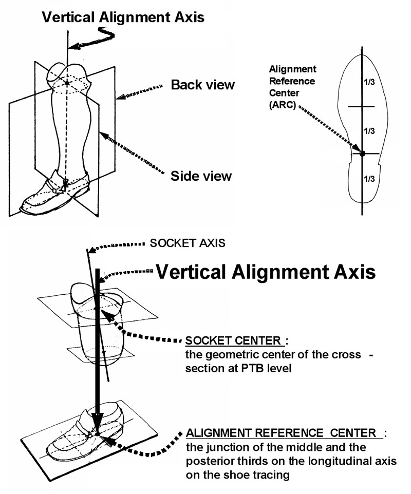 simplifying alignment for transtibial prostheses