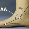 Active Stance: Orthoses – Functional relevance of the arch