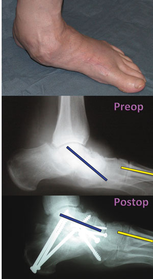 Therapeutic management of flexible flatfoot pain | Lower