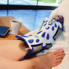 Night splint treatment of plantar fasciitis pain