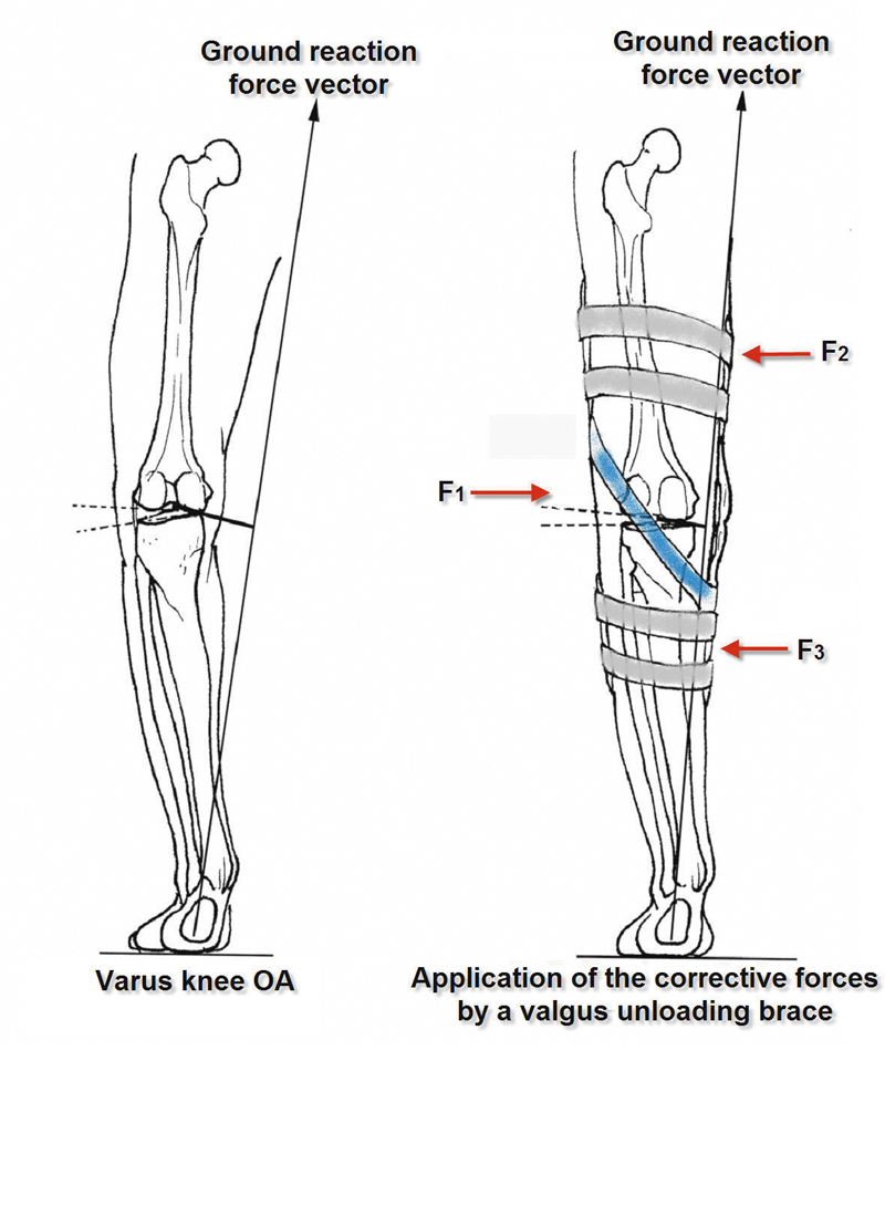 Offloading strategies for knee osteoarthritis lower extremity figure 4 three point bending mechanism of a knee pooptronica