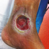 Diabetes experts focus on foot ulcer recurrence