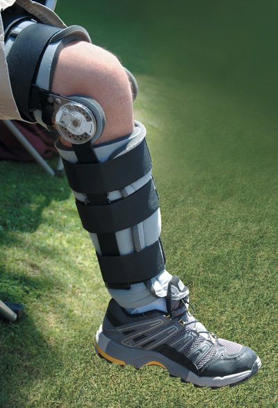 7d96f205da Postop bracing after ACL reconstruction | Lower Extremity Review ...