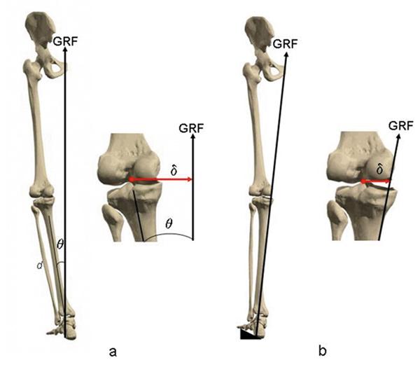 Knee Mechanics And The Foot