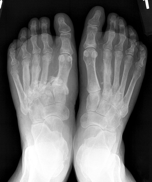 Differential diagnosis of Charcot arthropathy | Lower Extremity ...