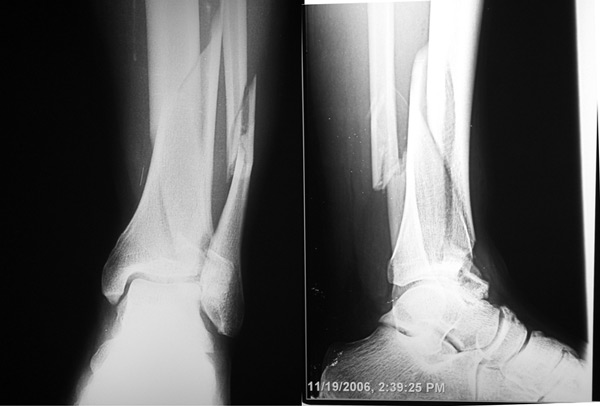 OA after ankle fracture: Surgery's complex role | Lower Extremity ...