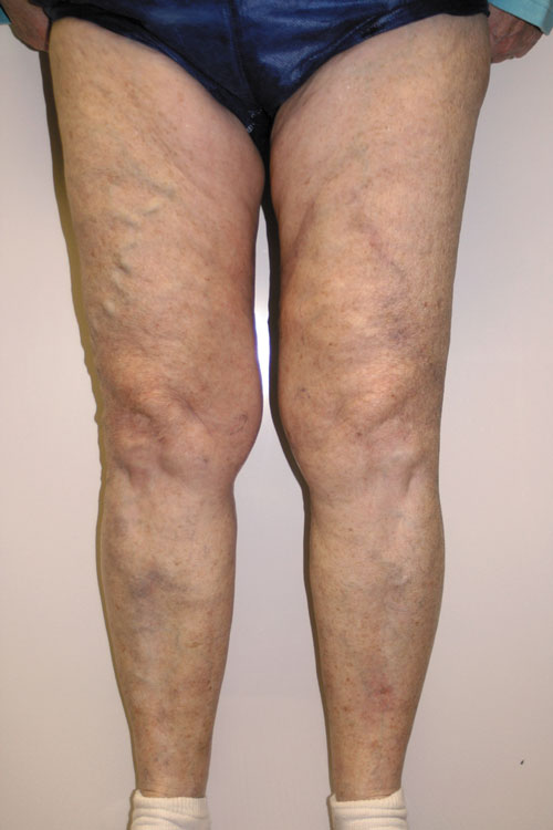 vascular viewpoint improving superficial thrombophlebitis care