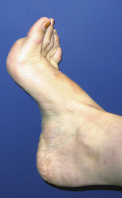 Orthotic management of the pes cavus foot | Lower Extremity