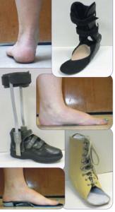 Evidence-based orthotic management of