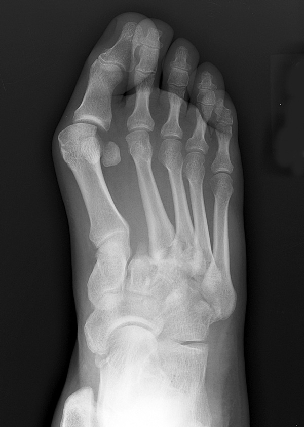 Clinical Management Of Lisfranc Joint Injuries Lower Extremity