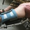 Amputation vs salvage for lower limb tumors