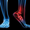 Fusion vs replacement: Both improve gait, but well short of normal