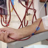 Dialysis treatment takes toll on diabetic foot care
