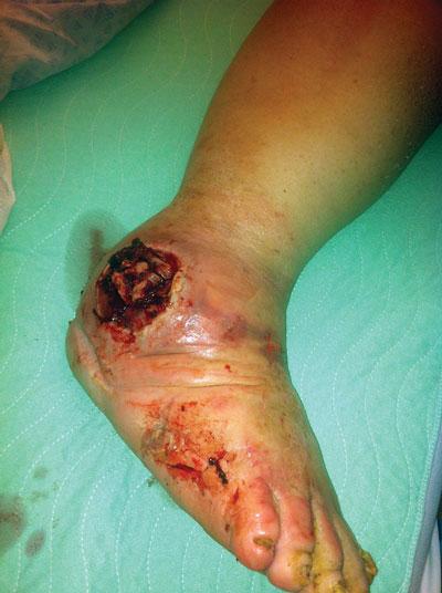 Diabetic Foot Ulcer - WebMD