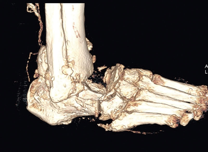 Figure 3b: Computed tomography reconstruction of the same patient. Note the severe fragmentation of the ankle and tarsal bones.
