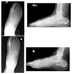 Preoperative (top, left and right) and postoperative (bottom, left and right) images of a 59-year-old man who underwent first MTP arthrodesis for end- stage hallux rigidus. (Images courtesy of Paul Kim, DPM, MS.)