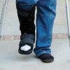 The influence of obesity on ankle fracture risk