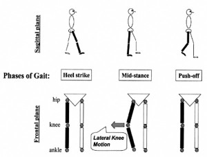 Drawings representing the stance phase of gait for the right leg. The lateral knee mo- tion represents varus thrust, the abrupt first apprearance of varus alignment (bow- leggedness), or the abrupt worsening of existing varus alignment in the weightbearing limb, with return to less varus alignment after push-off. (Reprinted with permission from reference 1.)
