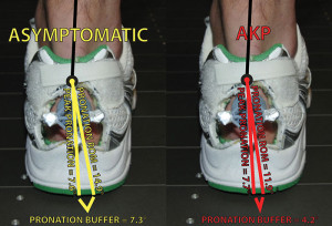 Figure 2. The pronation buffer of asymptomatic runners (yellow) and runners with anterior knee pain (red). We calculated the pronation buffer by subtracting an indi- vidual's passive pronation ROM from his or her peak dynamic pronation value while running.