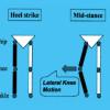 The role of varus thrust in knee osteoarthritis