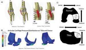 Figure 2. Injury conditions that resulted in peak articular cartilage contact pressure locations in the posterolateral tibia and lateral femur. A: Combined abduction, tibial rotation, and anterior tibial translation injury conditions. B: Ar- ticular cartilage pressure distribution during abduction, tibial rotation, and anterior tibial translation in the group of individuals who suffered ACL injuries. C: Loading conditions that resulted in articular cartilage stress patterns similar to the bone bruise patterns associated with ACL injury on the femur and tibia. (Reprinted with permission from ref- erence 15.)