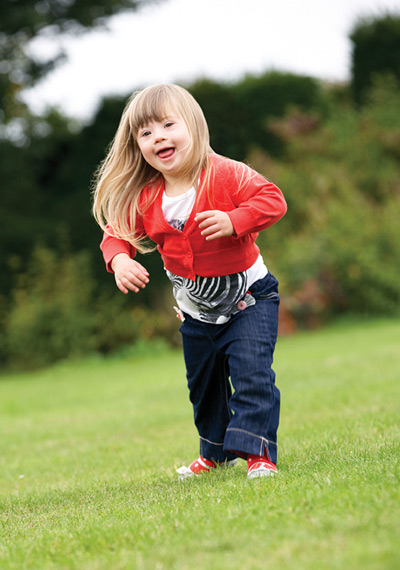 Orthosis use in children with Down syndrome | Lower