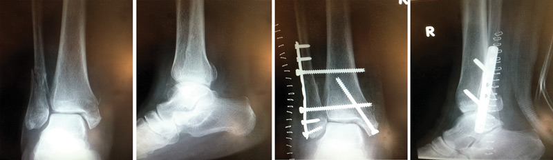 Anteroposterior (A/P) ankle radiograph (far left) and lateral ankle radiograph (center left) of a right trimalleolar ankle fracture. A/P ankle radiograph (center right) and lateral ankle radiograph (far right) show the same ankle after open reduction and internal fixation (ORIF).
