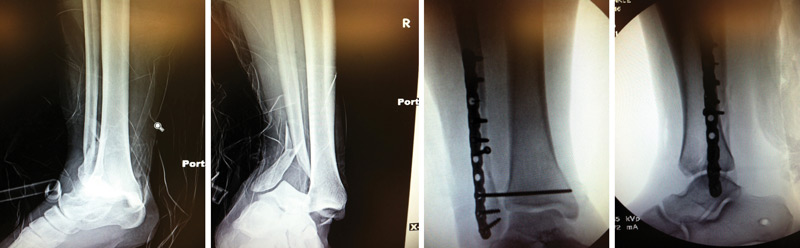 Anteroposterior (A/P) ankle radiograph (far left) and lateral ankle radiograph (center left) show of a right dislocated bimalleolar equivalent ankle fracture, prereduction. A/P ankle radiograph (center right) and lateral ankle radiograph (far right) show the same ankle immediately postop after open reduction and internal fixation (ORIF).