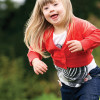 Orthosis use in children with Down syndrome