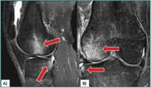 Figure 1. Magnetic resonance images of bone bruise patterns (lateral femoral condyle and posterolateral tibial plateau) associated with acute anterior cruciate ligament (ACL) injury, to which finite element model data are compared to determine relevance of injury condition. A: Sagittal plane view shows the more posterior location of the tibial bruise relative to the femoral bruise. Arrows point to the hyperintense signals associated with bone bruises. B: Frontal plane view shows lateral compression of the femur and tibia. (Reprinted with permission from reference 15.)