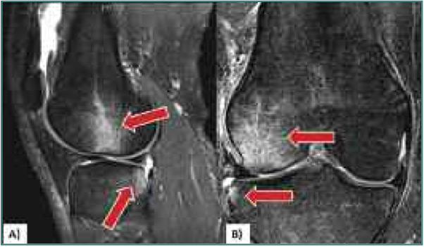 Figure 1 Magnetic Resonance Images Of Bone Bruise Patterns Lateral Femoral Condyle And Posterolateral