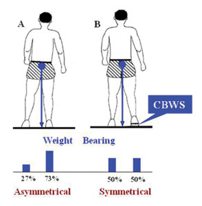 Figure 1. Schematic representation of a stroke- related asymmetry of stance and weight bearing in a person with right hemiplegia (A) and the role of the compelled body-weight shift (CBWS) approach in restoring symmetry (B). Note that the shoe lift shifts the center of gravity to the midline. Weight bearing is reported as percentage of the total body weight.