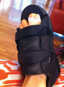 Figure 1. The soft boot worn immediately after surgery.