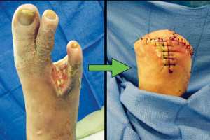 Figure 1. A biomechanically compromised foot secondary to extensive bone resection and soft tissue debridement following a diabetic foot infection. The patient required a transmetatarsal amputation.