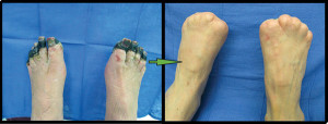 Figure 2. Bilateral gangrene of the distal aspect of the pedal digits. Partial pandigital amputations were performed to maximize foot length.