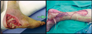 Figure 3. Closure of a chronic hindfoot wound utilizing a reverse sural artery flap. A split-thickness skin graft was harvested from the ipsilateral leg and applied to the donor site.