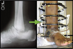 Figure 4. Osteoarthropathy of the rearfoot and ankle. A tibiocalcaneal and midtarsal arthrodesis was performed utilizing external fixation to salvage the limb and create a stable plantigrade foot.