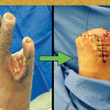 Diabetic limb salvage: Surgeon's perspective