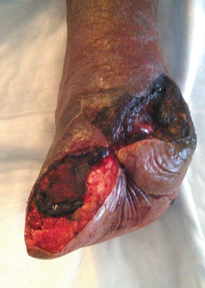 Figure 2. This diabetic man, aged 59 years, with severe PAD underwent an open Chopart amputation, then progressed to a Syme amputation, which eventually healed.